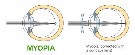ww myopia